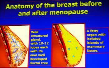 fibrocystic disease