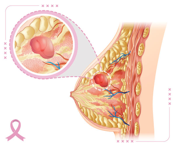 Taking a closer look at breast cancer nodes